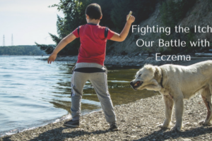 Fighting the Itch_ Our Battle with Eczema