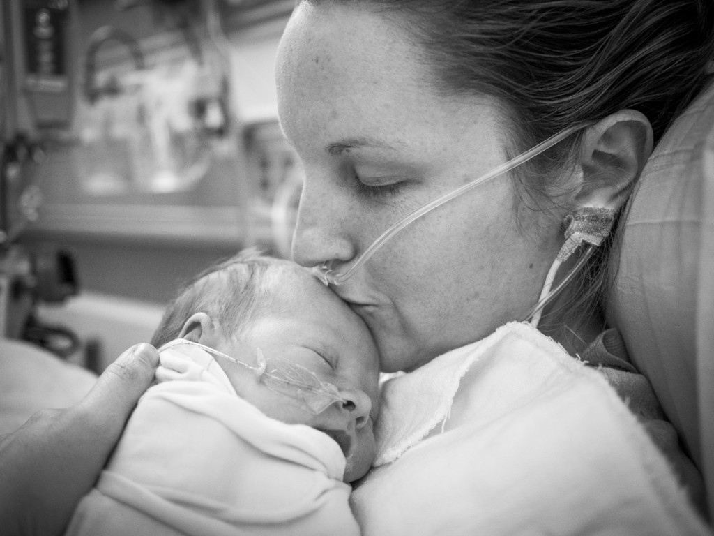 I Nearly Died Giving Birth: Surviving an Amniotic Fluid Embolism